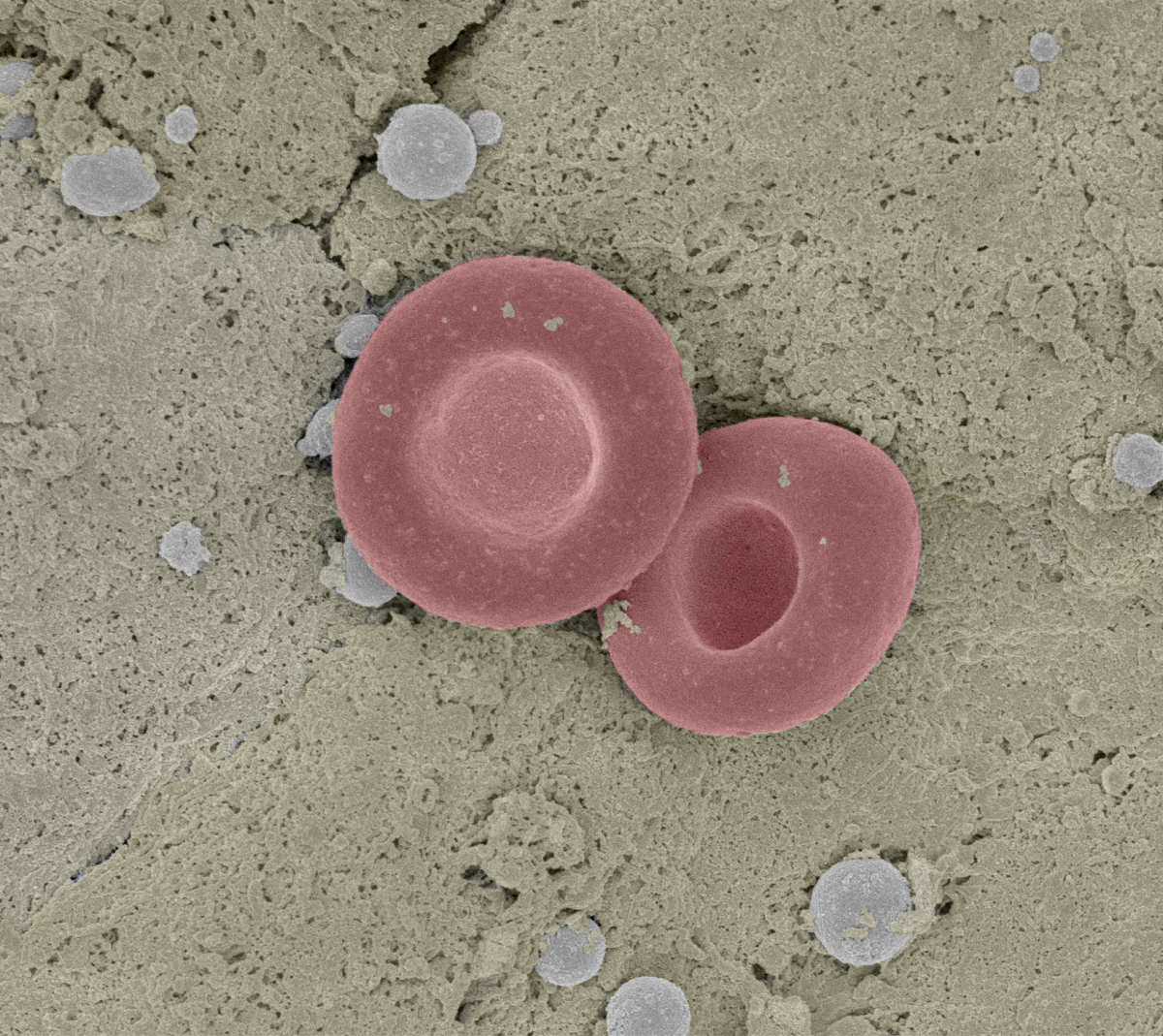 A scanning electron micrograph of red blood cell in a mouse liver.