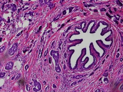 A breast tumor stained with Hematoxylin and Eosin. The type of Breast cancer is called Infiltrating ductal carcinoma of the breast.
