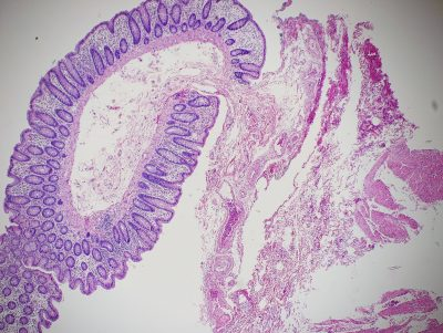 Normal colon stained with Hematoxylin and Eosin